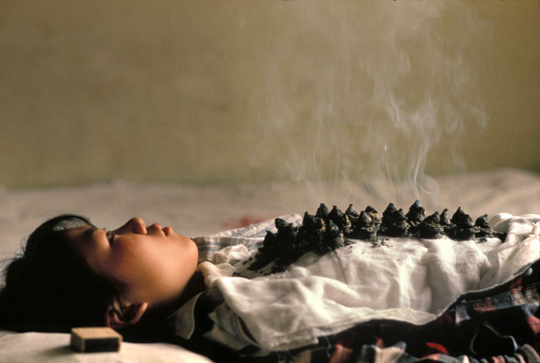 Photo of Moxibustion