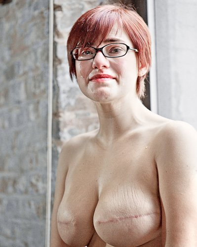 Portrait of young breast cancer survivor The SCAR Project